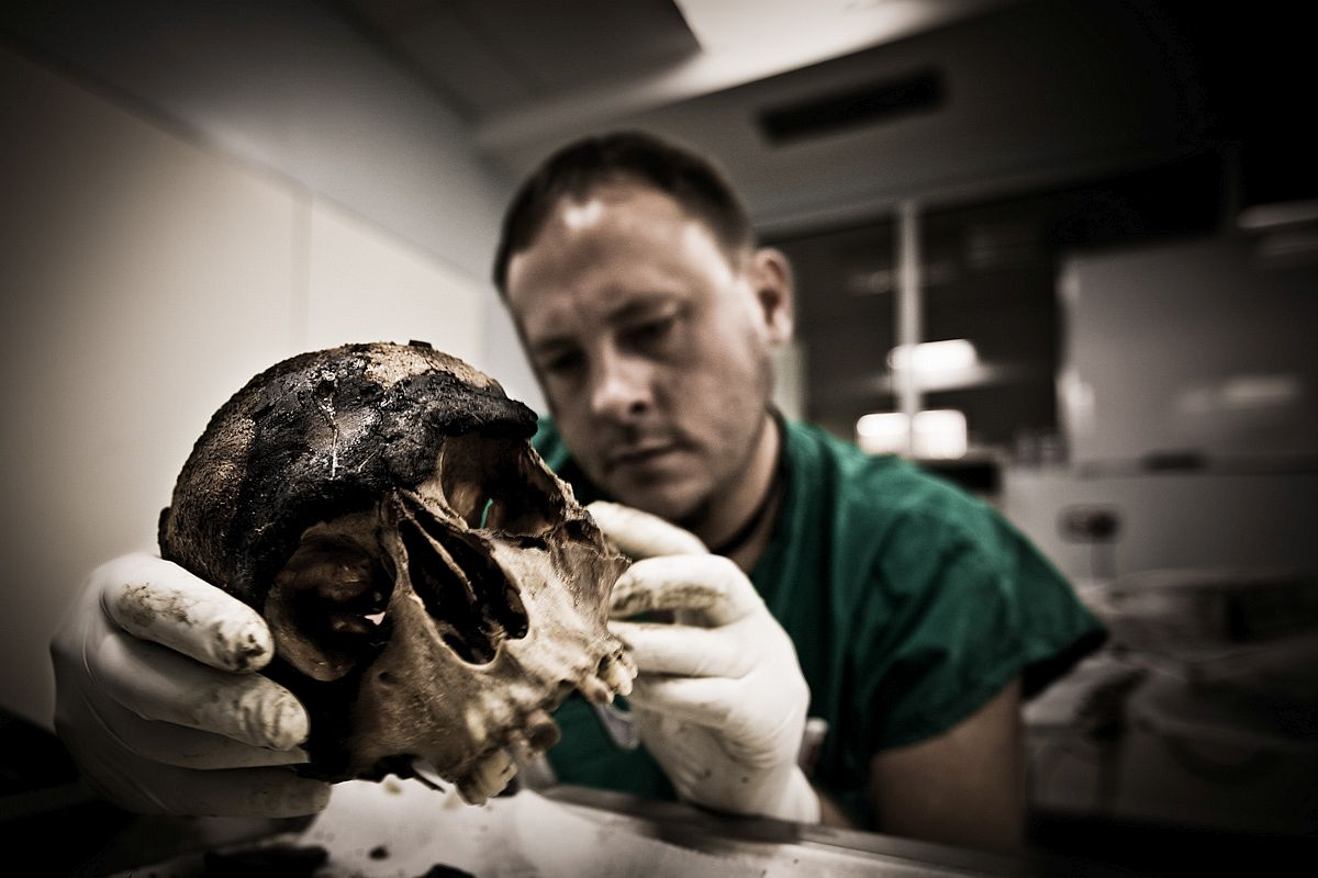 A United Nations forensic pathologist, examines the remains of an unknown girl, about 8-10 years  old, found in a mass grave
