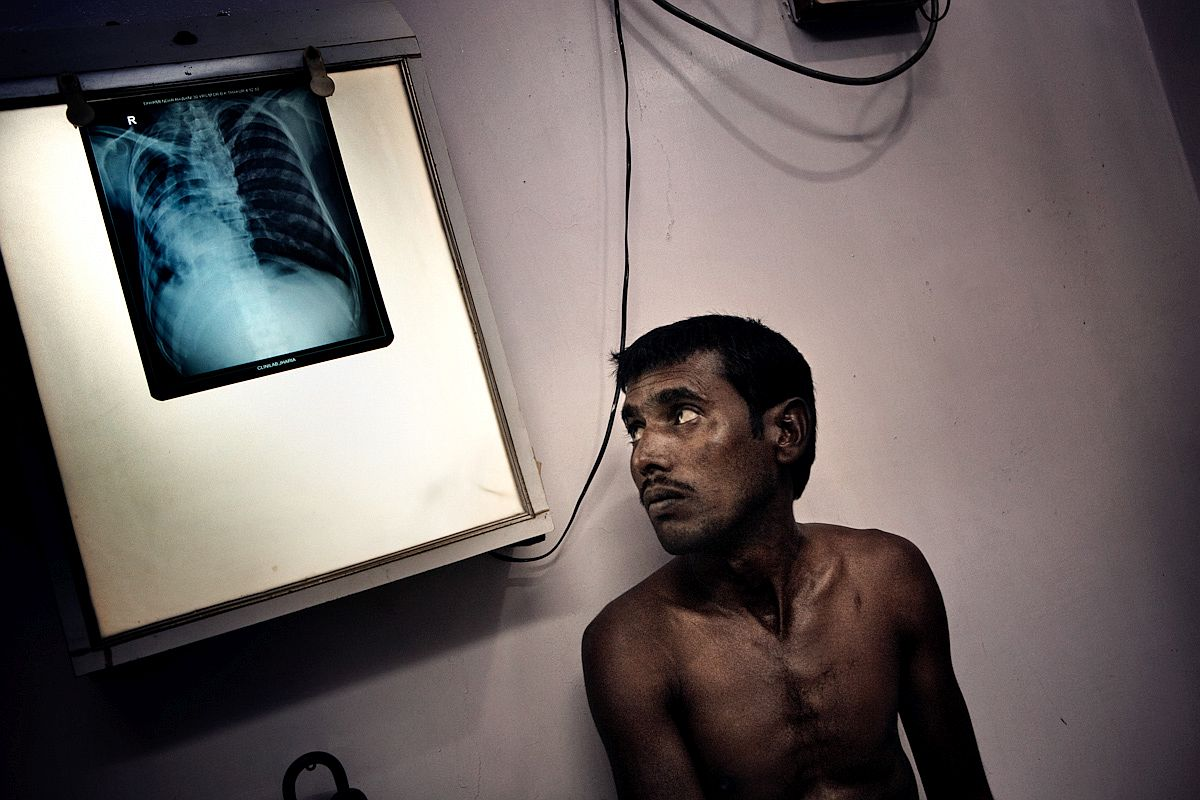 In Dhanbad medical clinic a miner looks at his chest x-ray picture, seeing the devastating effects of pollution which left him with only one compromised lung.